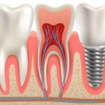 Don't Let One Missing Tooth Damage the Rest of Your Mouth. Dental Implants